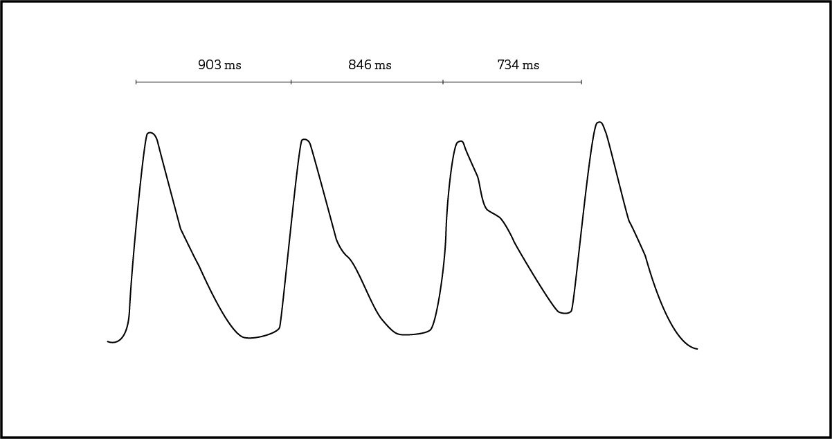 What Is Heart Rate Variability And What Can You Learn From It Oura