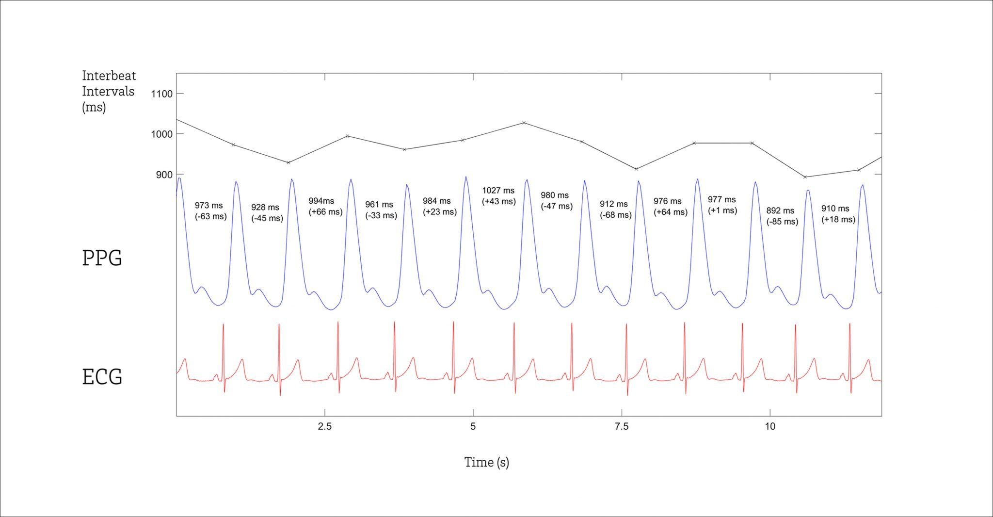 ECG, PPG and HRV graphs